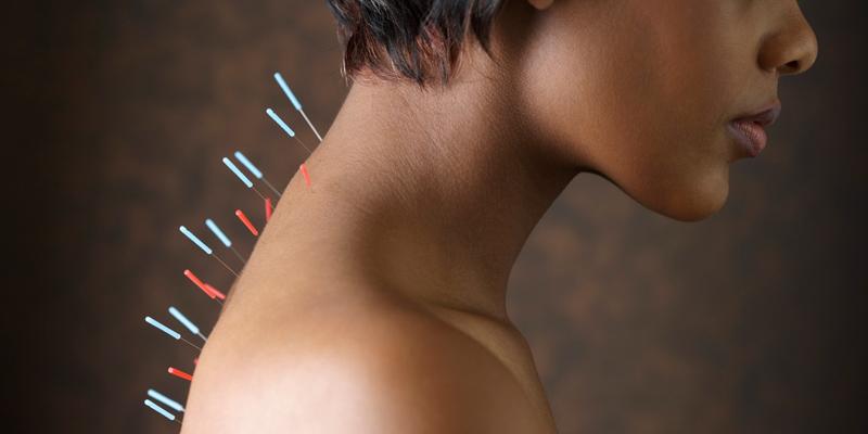 L'agopuntura è in grado di ripristinare l'equilibrio energetico dell'individuo, garantendo lo stato di benessere.