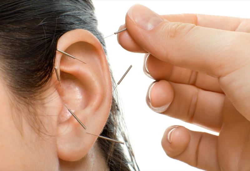 L'auricoloterapia stimola il padiglione auricolare con aghi o laser